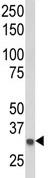 Western blot - BIN3 antibody - N-terminal (ab93403)