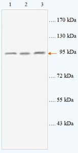 Western blot - Acetylcholinesterase antibody (ab93487)