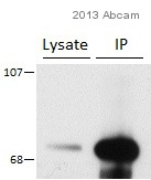 Immunoprecipitation - Anti-CACNB2 antibody [S8b-1] (ab93606)