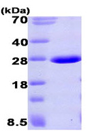 SDS-PAGE - Aprataxin protein (His tag) (ab93630)