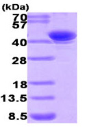 SDS-PAGE - AKR7A2 protein (His tag) (ab93634)