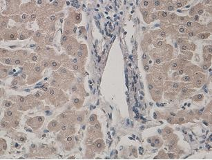 Immunohistochemistry (Formalin/PFA-fixed paraffin-embedded sections) - SREBP1 antibody (ab93638)