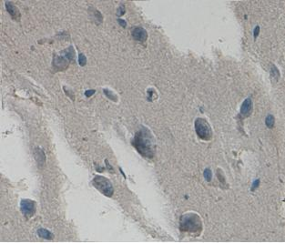 Immunohistochemistry (Formalin/PFA-fixed paraffin-embedded sections) - HYAL2 antibody (ab93651)