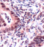 Immunohistochemistry (Formalin/PFA-fixed paraffin-embedded sections) - MSH3 antibody (ab93663)
