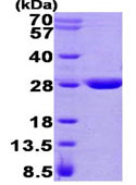 SDS-PAGE - Glutathione Transferase zeta 1 protein (His tag) (ab93691)