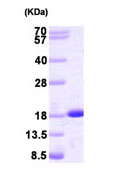 SDS-PAGE - NME2 protein (Human) (ab93692)