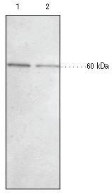 Western blot - KDM4D / JMJD2D antibody (ab93694)