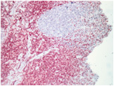 Immunohistochemistry (Formalin/PFA-fixed paraffin-embedded sections) - Mouse and Rabbit Specific HRP/AEC detection IHC kit  (ab93705)