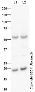 Western blot - LMO4 antibody (ab93714)
