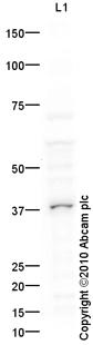 Western blot - CHX10 antibody (ab93715)