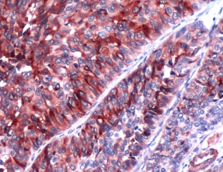 Immunohistochemistry (Formalin/PFA-fixed paraffin-embedded sections) - Uroplakin III antibody [SP73] (ab93721)
