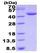 SDS-PAGE - DHPS protein (His tag) (ab93734)