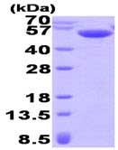 SDS-PAGE - Calsequestrin 2 protein (His tag) (ab93736)
