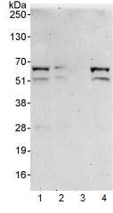 Western blot - DKC1 antibody (ab93777)
