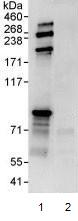 Immunoprecipitation - PI 3 Kinase p85 beta antibody (ab93778)