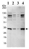 Western blot - CEE antibody (ab93801)