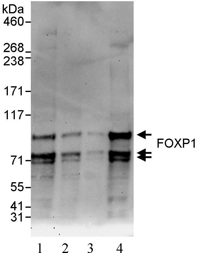 Western blot - FOXP1 antibody (ab93807)