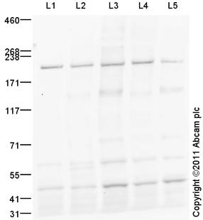 Western blot - TIAM2 antibody (ab93839)