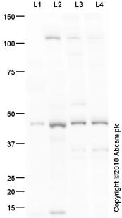 Western blot - Inhibin beta A antibody (ab93847)