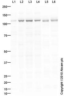 Western blot - Integrin alpha E antibody (ab93848)