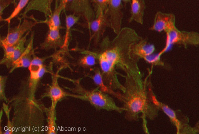 Immunocytochemistry/ Immunofluorescence - Integrin alpha E antibody (ab93848)