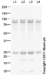 Western blot - CABP antibody (ab93853)