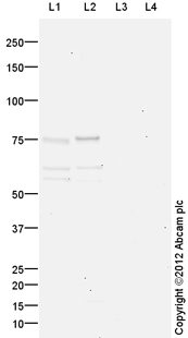 Western blot - Anti-LIM kinase 2b antibody (ab93854)