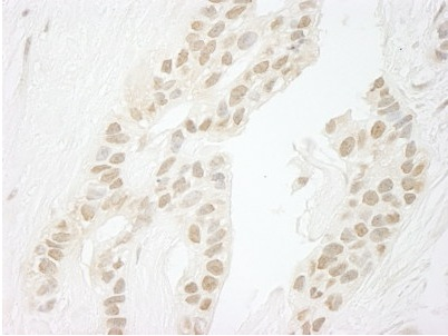 Immunohistochemistry (Formalin/PFA-fixed paraffin-embedded sections) - PP1C gamma antibody (ab93864)