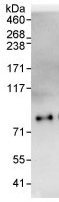 Immunoprecipitation - EYA4 antibody (ab93865)