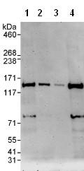 Western blot - WDR11 antibody (ab93871)