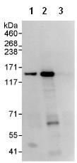 Immunoprecipitation - WDR11 antibody (ab93871)