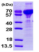 SDS-PAGE - Cornulin protein (His tag) (ab93883)