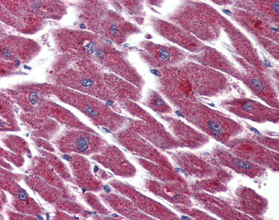 Immunohistochemistry (Formalin/PFA-fixed paraffin-embedded sections) - EDG7 antibody (ab93905)