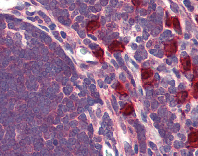 Immunohistochemistry (Formalin/PFA-fixed paraffin-embedded sections) - GPR88 antibody (ab93906)
