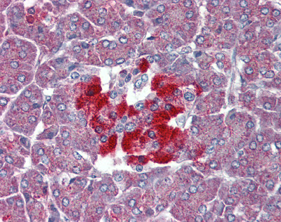 Immunohistochemistry (Formalin/PFA-fixed paraffin-embedded sections) - GPCR GPR102 antibody (ab93907)