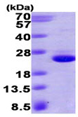 SDS-PAGE - GTPase HRAS protein (His tag) (ab93949)
