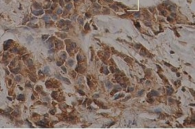Immunohistochemistry (Formalin/PFA-fixed paraffin-embedded sections) - Cyclin B1 antibody (ab93956)