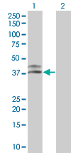 Western blot - Cathepsin H 293T Transfected Lysate - (positive control) (ab94087)
