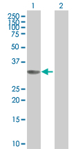 Western blot - Cyclin D2 293T Transfected Lysate - (positive control) (ab94090)