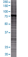 SDS-PAGE - Ezrin 293T Transfected Lysate - (positive control) (ab94091)