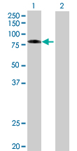 Western blot - Ezrin 293T Transfected Lysate - (positive control) (ab94091)