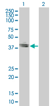 Western blot - EpCAM 293T Transfected Lysate - (positive control) (ab94132)