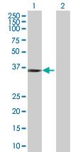 Western blot - BRDG 1 293T Transfected Lysate - (positive control) (ab94204)