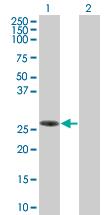 Western blot - SLAP2 293T Transfected Lysate - (positive control) (ab94209)
