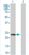 Western blot - BAG2 293T Transfected Lysate - (positive control) (ab94218)