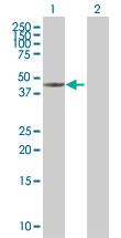 Western blot - Cytokeratin 17 293T Transfected Lysate - (positive control) (ab94233)