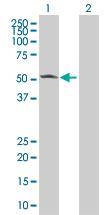 Western blot - CaMKII alpha  293T Transfected Lysate - (positive control) (ab94251)