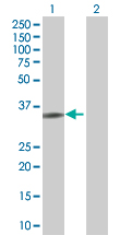 Western blot - Fos B 293T Transfected Lysate - (positive control) (ab94279)