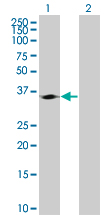 Western blot - Cdk4 293T Transfected Lysate - (positive control) (ab94290)