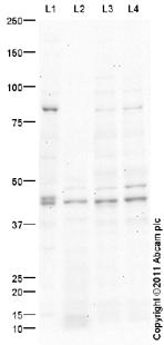 Western blot - HB9/HLXB9 antibody (ab94360)